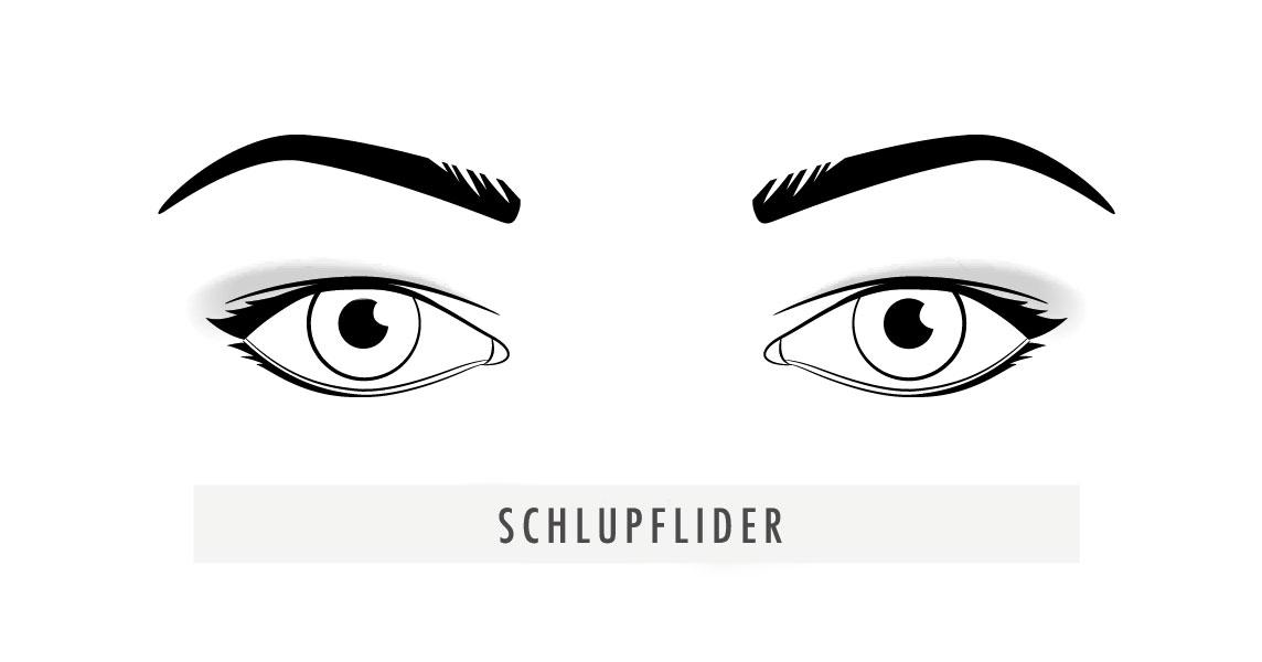 Schlupflider
